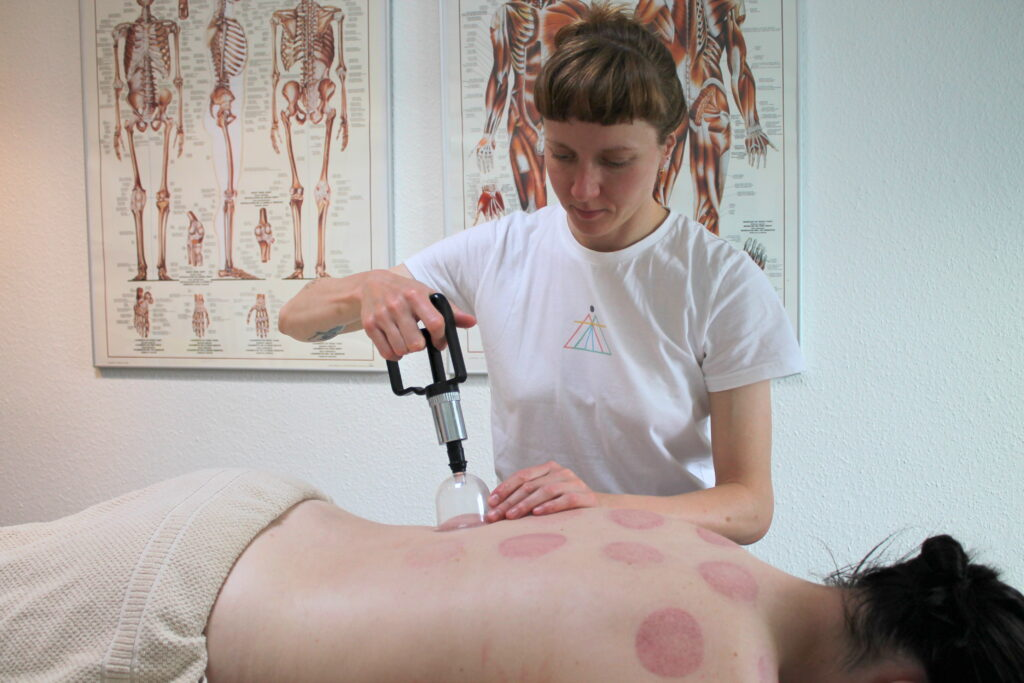 Cupping behandling med stationære kopper